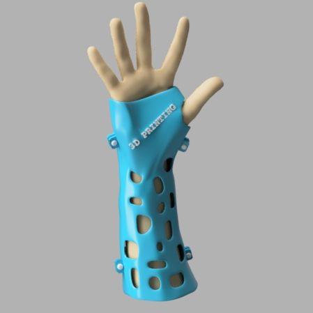 3D printing splint|Autodesk Online Gallery